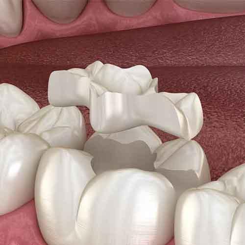 dental inlays procedure