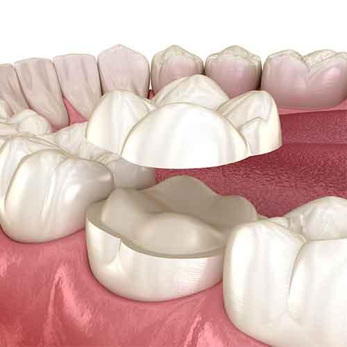 dental onlays procedure